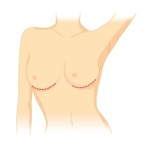 mastoplastica additiva - incisione sottomammaria