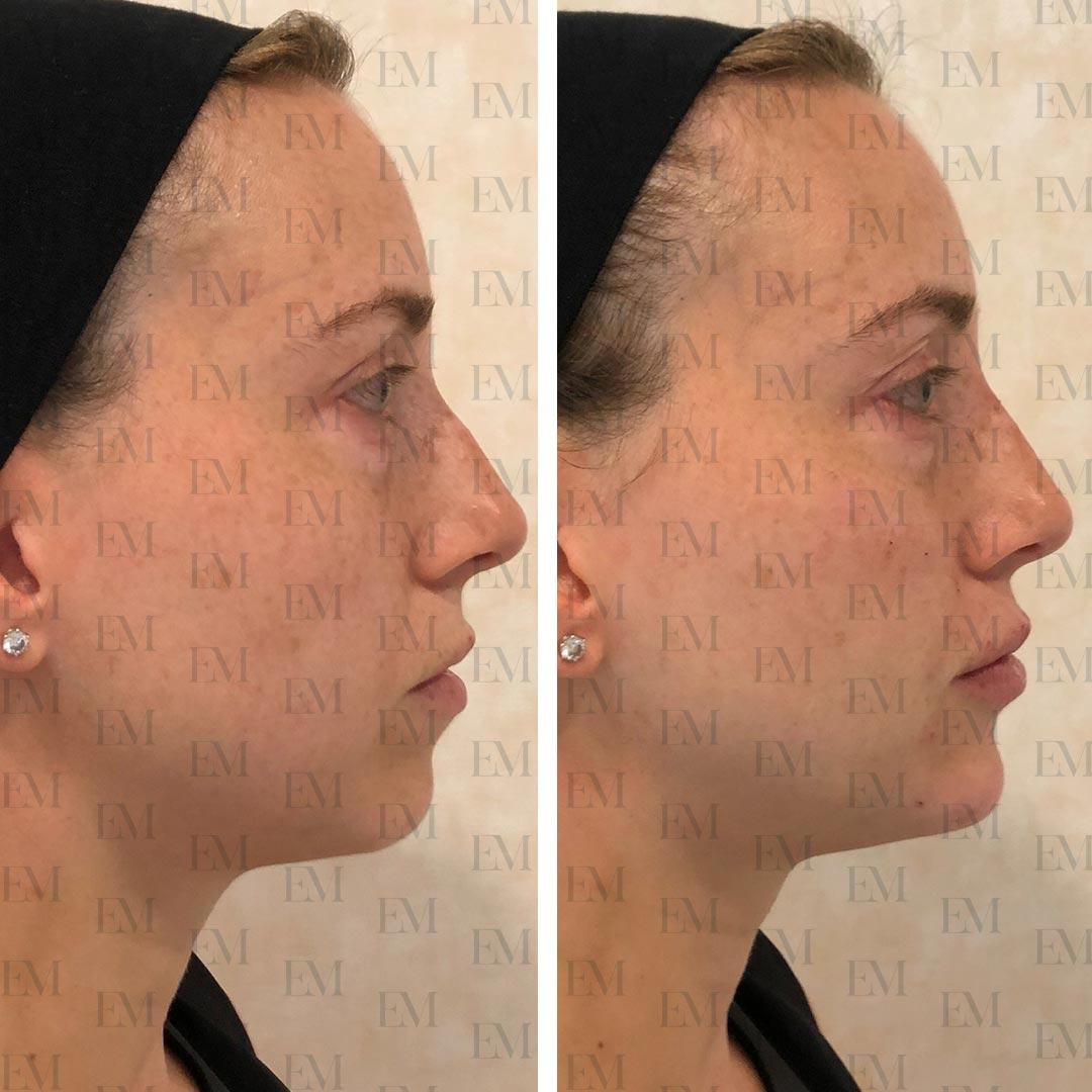 Face contouring a Roma